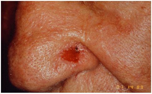 Carcinoma Basocellulare