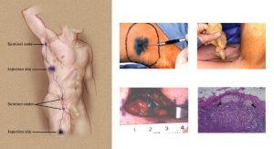 Biopsia del linfonodo sentinella