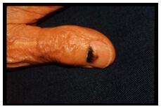 melanomalentiginoso